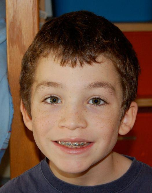Jacob with braces