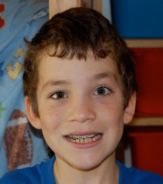 Joshua - 4th grade with braces